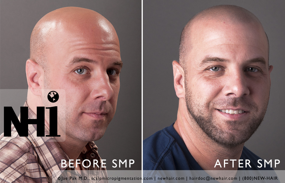 SMP before and after