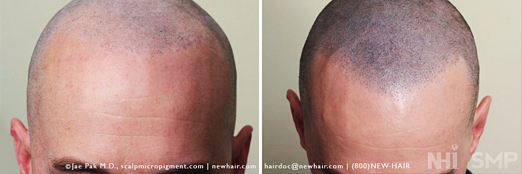 Scalp MicroPigmentation review at new-hair-institute-bold-shaved-
