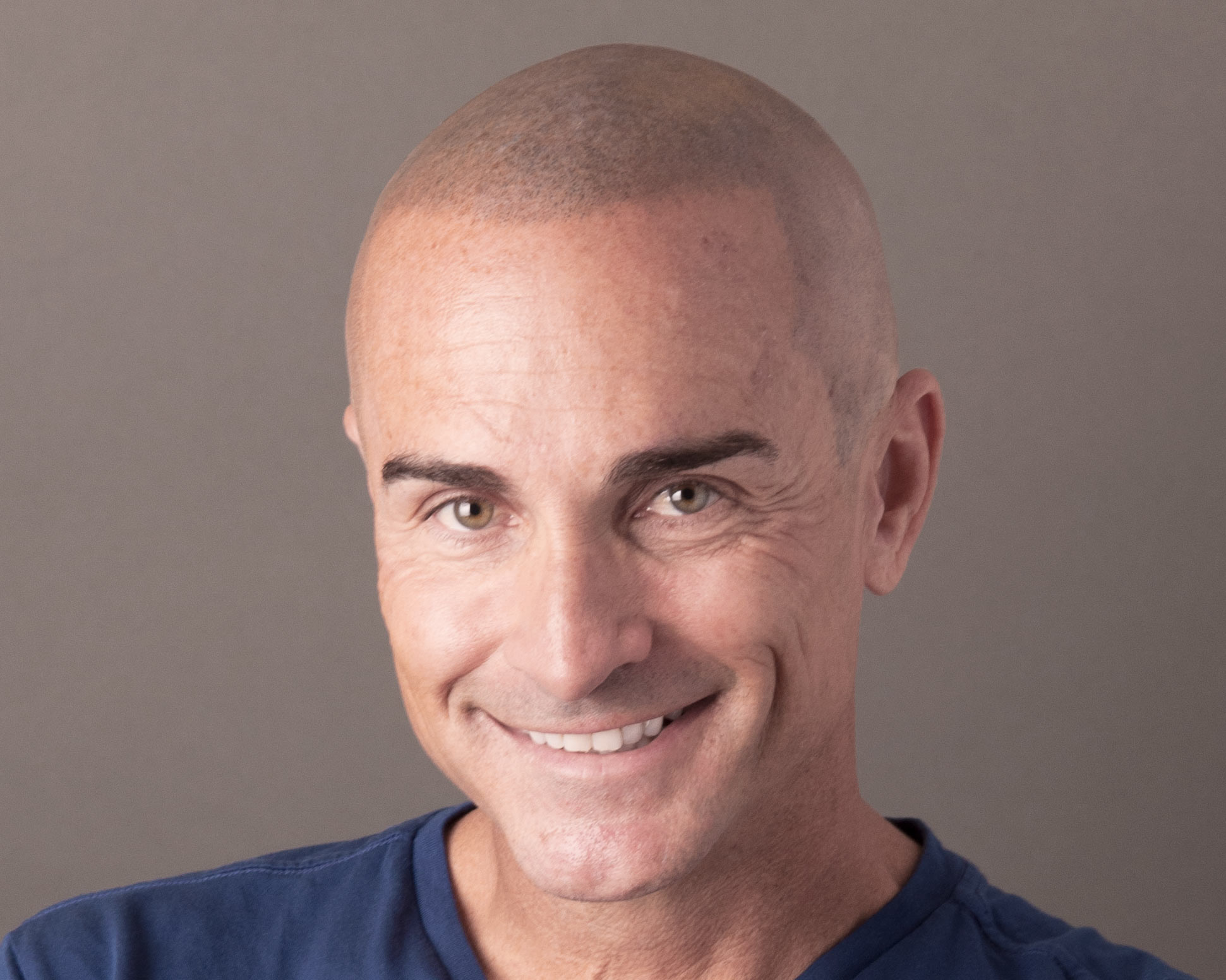 Scalp Micropigmentation Smp New Hair Institute Hair