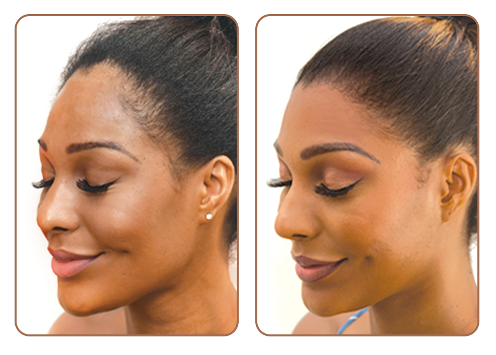 Hairline Lowering Before and After