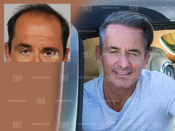 Before and After Follicular Unit Excision of Frederic Marq