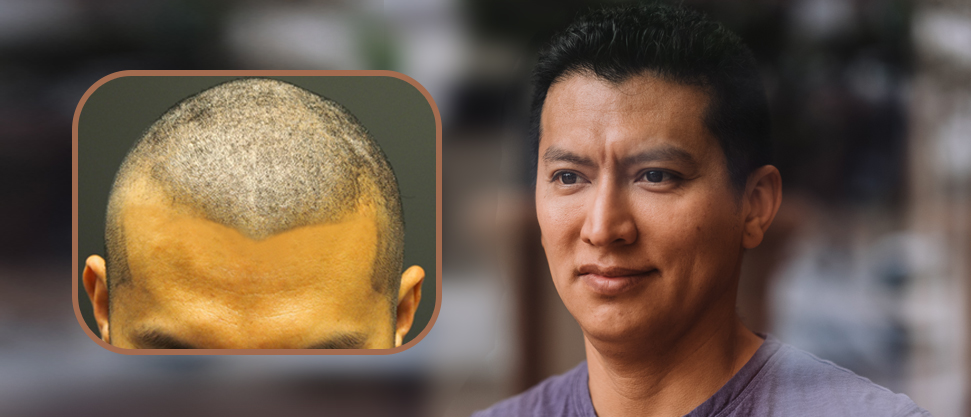 NHI Medical FUE Before and After