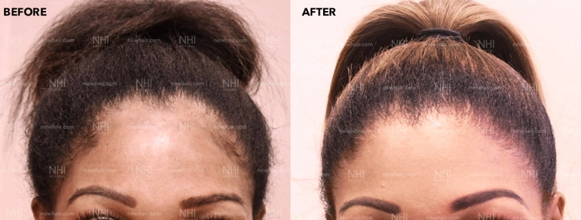 Forehead Reduction Front Results by Dr. Jae Pak