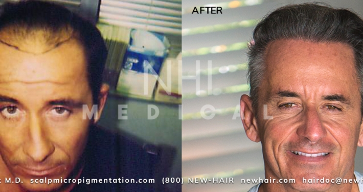 Fred Marq Hair Restoration by Dr Jae Pak