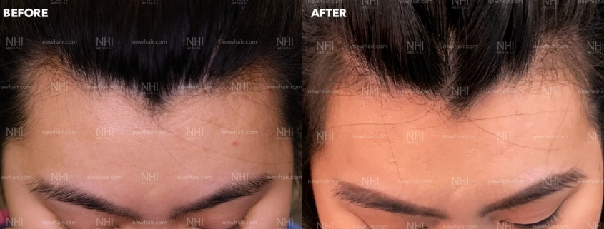 Hairline Lowering Front Results by Dr. Jae Pak
