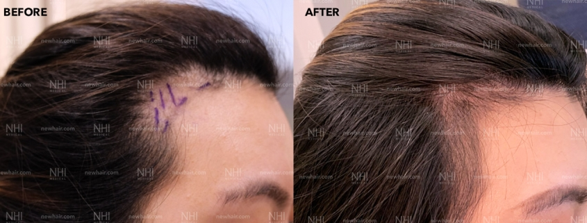 Hairline Lowering Side Results by Dr. Jae Pak