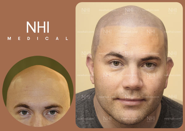NHI-Medical-Full-Face-Before-After-Results-25