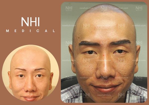 full-face-33