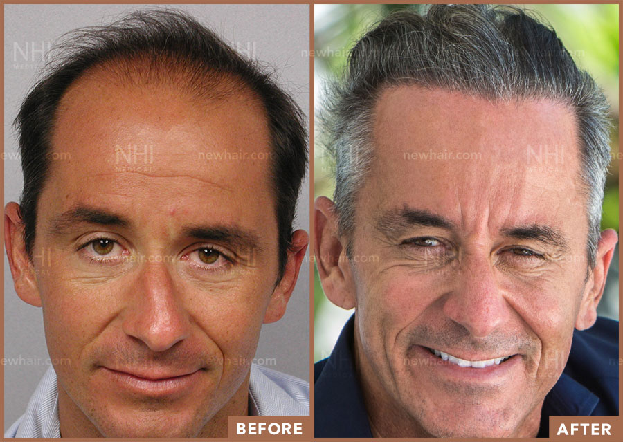 full-face-before-after-fm-hair-restoration