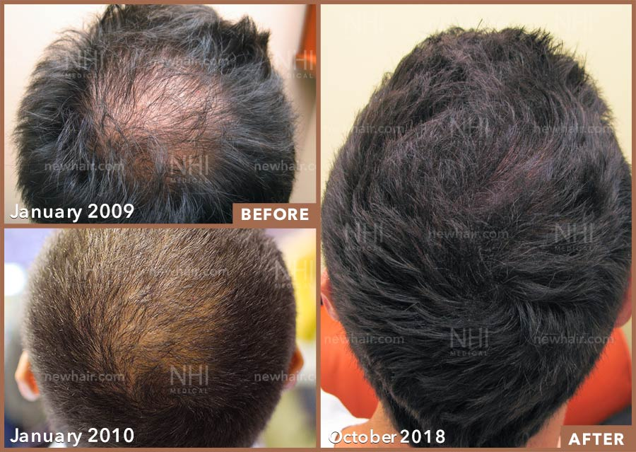 hair_transplant_fue_fut_before_after_201901