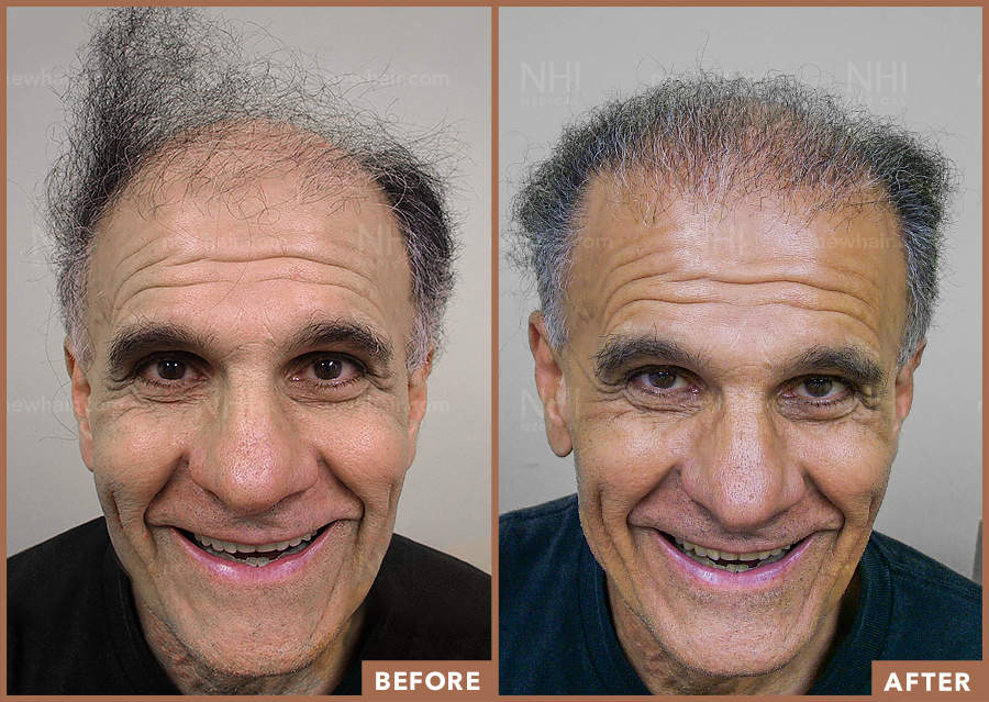 hair_transplant_fue_fut_before_after_202046