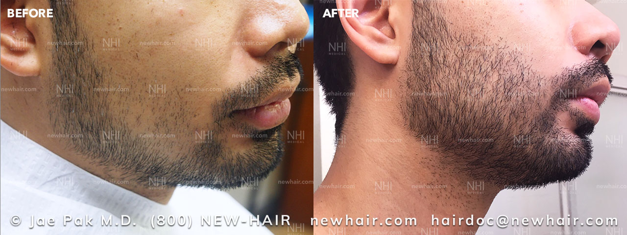 NHI Patient has Beard Transplant surgery done to fill out thin parts of beard