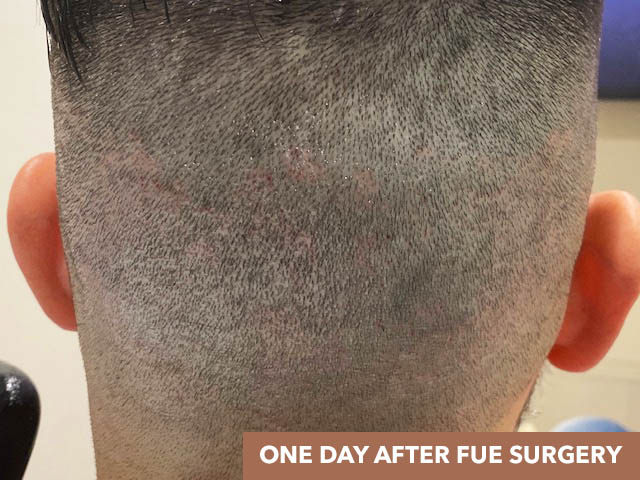 1 Day After Result of FUE Surgery Showing Wound Healing