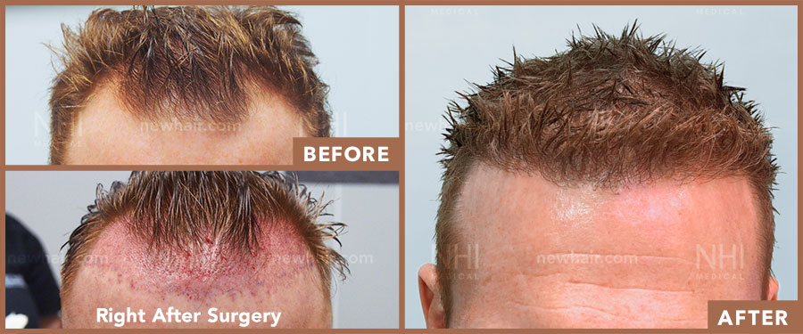 hair_transplant_fue_fut_before_after_201916
