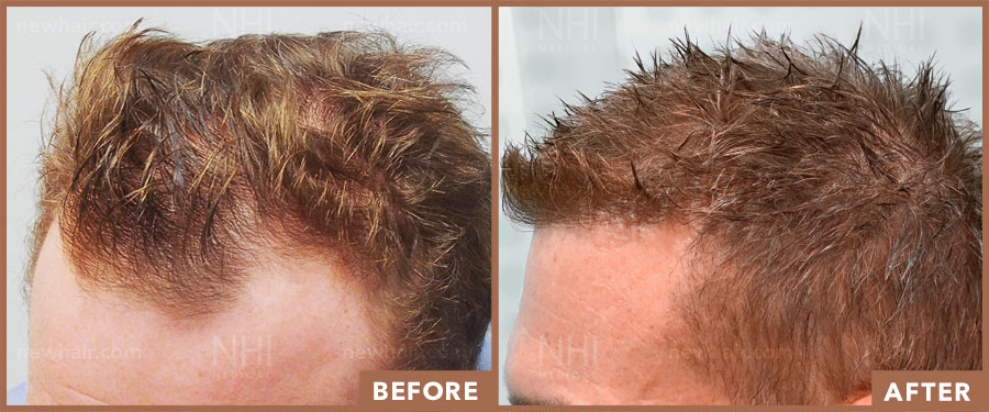 hair_transplant_fue_fut_before_after_201916_1