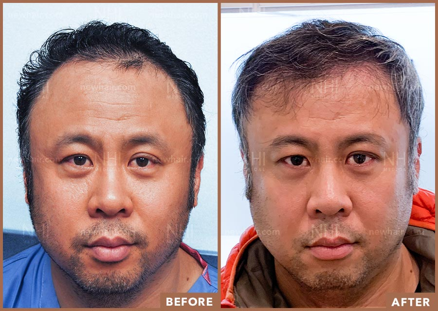 hair_transplant_fue_fut_before_after_201917