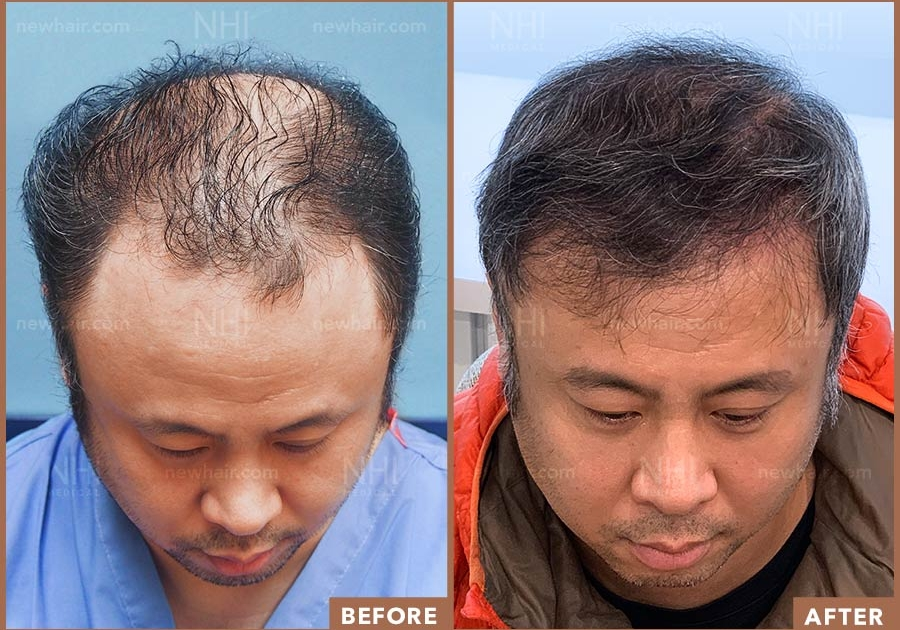 Before and After Image Result of Male Patient Norwood 5