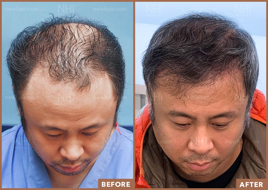 hair_transplant_fue_fut_before_after_201917_1