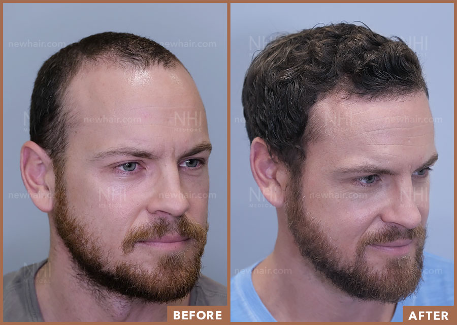 hair_transplant_fue_fut_before_after_201921_2