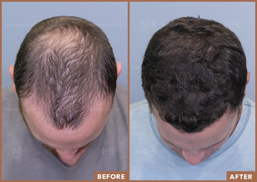 hair_transplant_fue_fut_before_after_201921_3