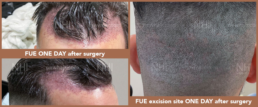 hair_transplant_fue_fut_before_after_201923