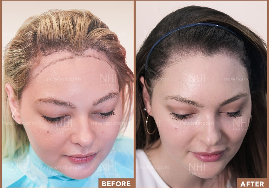 Before and After Image Result for Female Hairline Lowering
