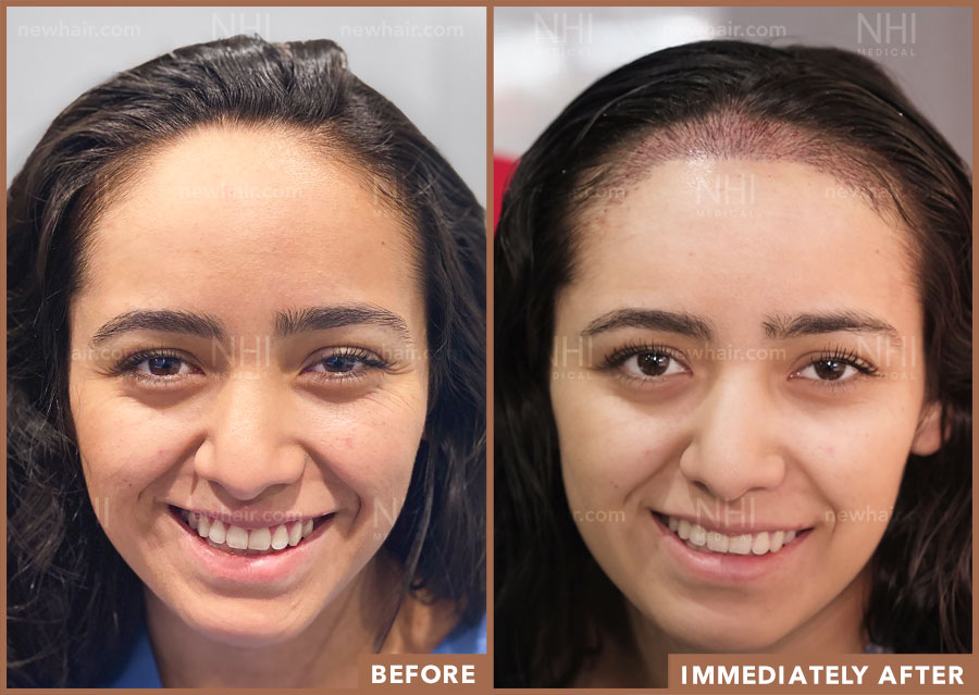 Before and After Comparison of Hairline Lowering Surgery 1 Day