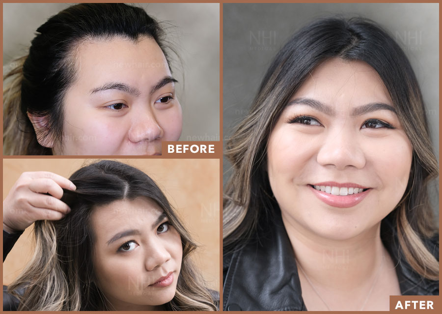 Before and After Comparison of Hairline Lowering Surgery