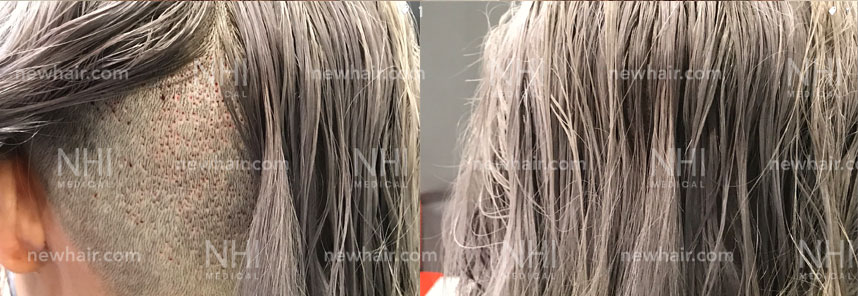 Female Patient with Long Hair FUE Harvesting