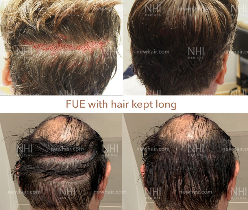 Male Patients with Long Hair FUE Harvesting