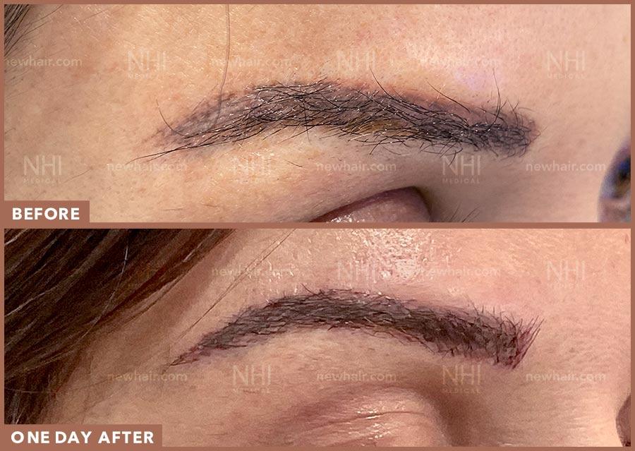 eyebrow_transplant_201904