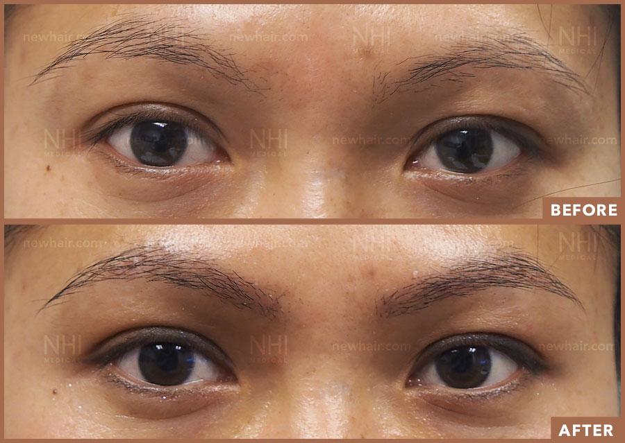 eyebrow_transplant_201922