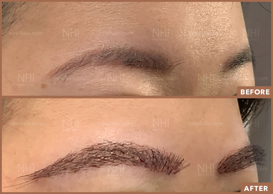 eyebrow_transplant_201928_1