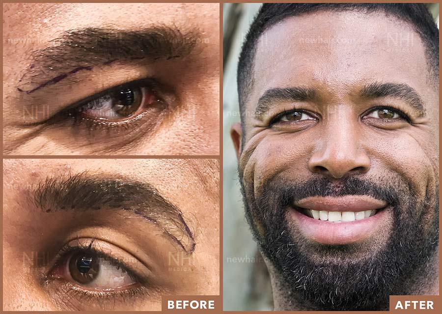 eyebrow_transplant_201931