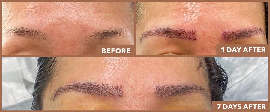 eyebrow_transplant_202030_1
