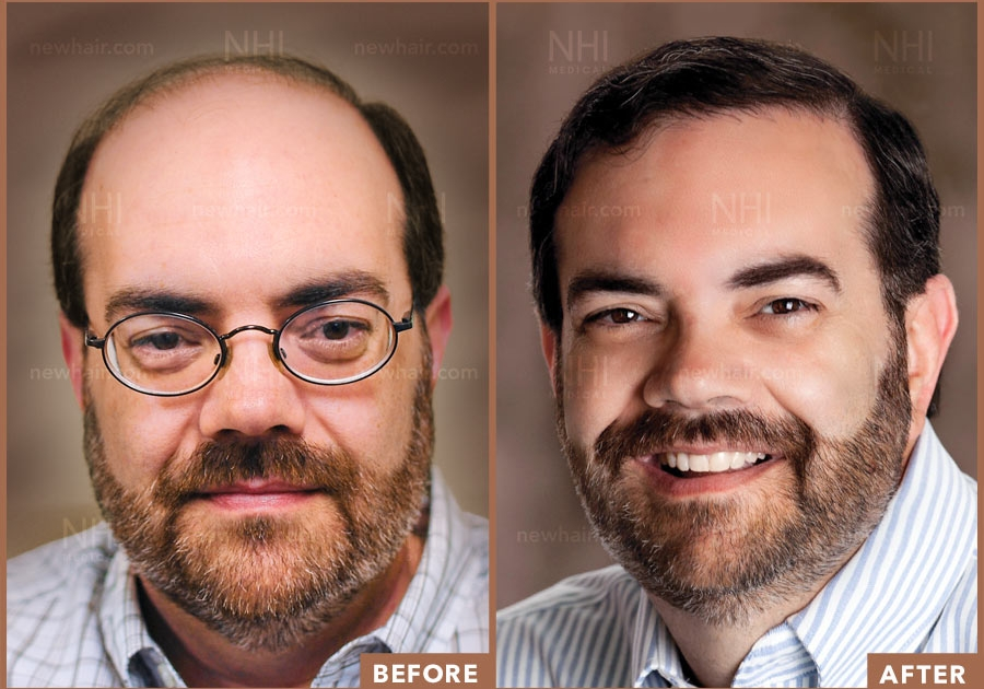 Male Hair Transplant Patient Before and After Results Norwood 6