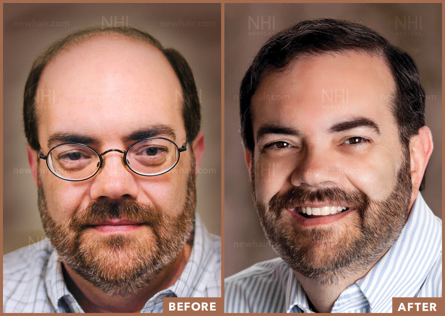 hair_transplant_fue_fut_before_after_201906