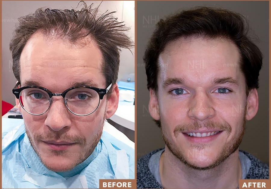 Hair Transplant Result Before and After Norwood 3
