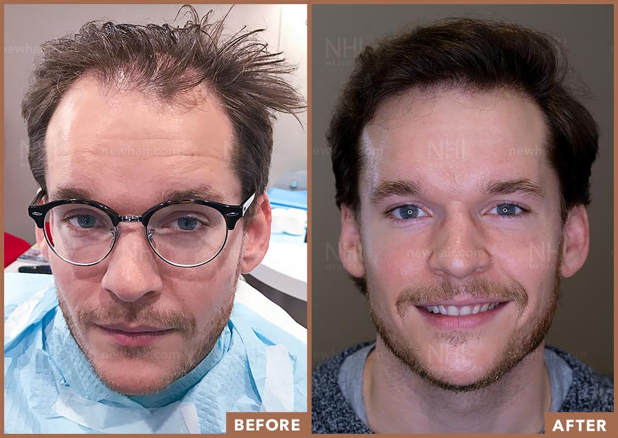 hair_transplant_fue_fut_before_after_201920