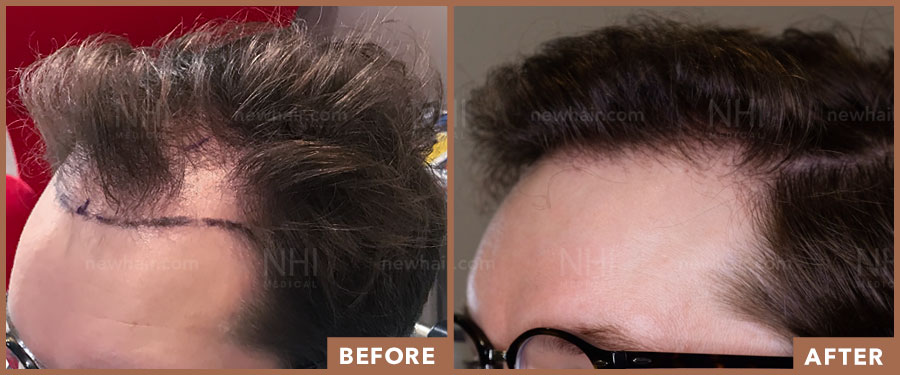 hair_transplant_fue_fut_before_after_201920_1