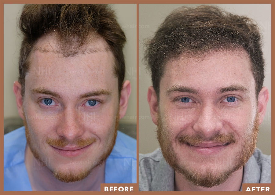 hair_transplant_fue_fut_before_after_201925
