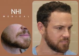 Beard (3/3)