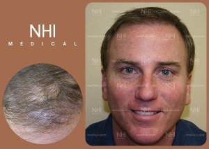 Hair Transplant Full Face (1/30)