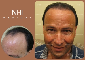 Hair Transplant Full Face (2/30)