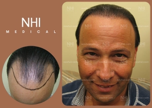 Hair Transplant Full Face (3/30)