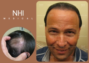 Hair Transplant Full Face (4/30)