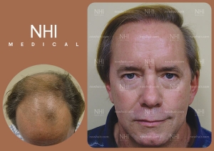 Hair Transplant Full Face (1/53)