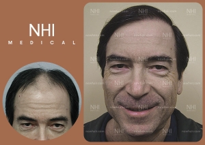 Hair Transplant Full Face (2/53)