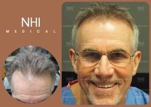 Hair Transplant Full Face (3/53)