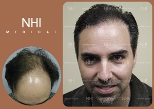 Hair Transplant Full Face (4/53)